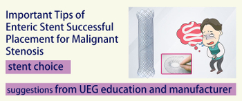 Important Tips of Enteric Stent Successful Placement for Malignant Stenosis