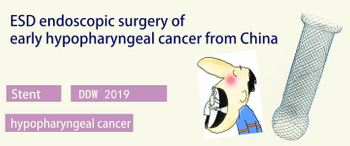 DDW 2019 Highlights ----ESD endoscopic surgery of early hypopharyngeal cancer from China